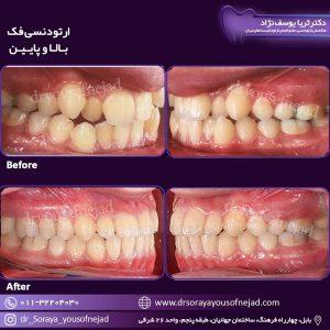 مرتب کردن دندان