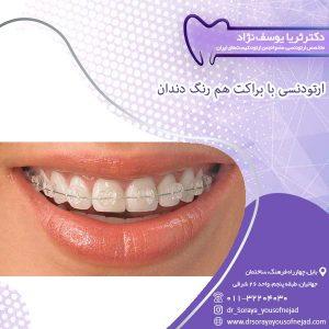 ارتودنسی با براکت هم رنگ دندان