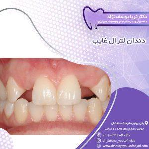 دندان لترال غایب